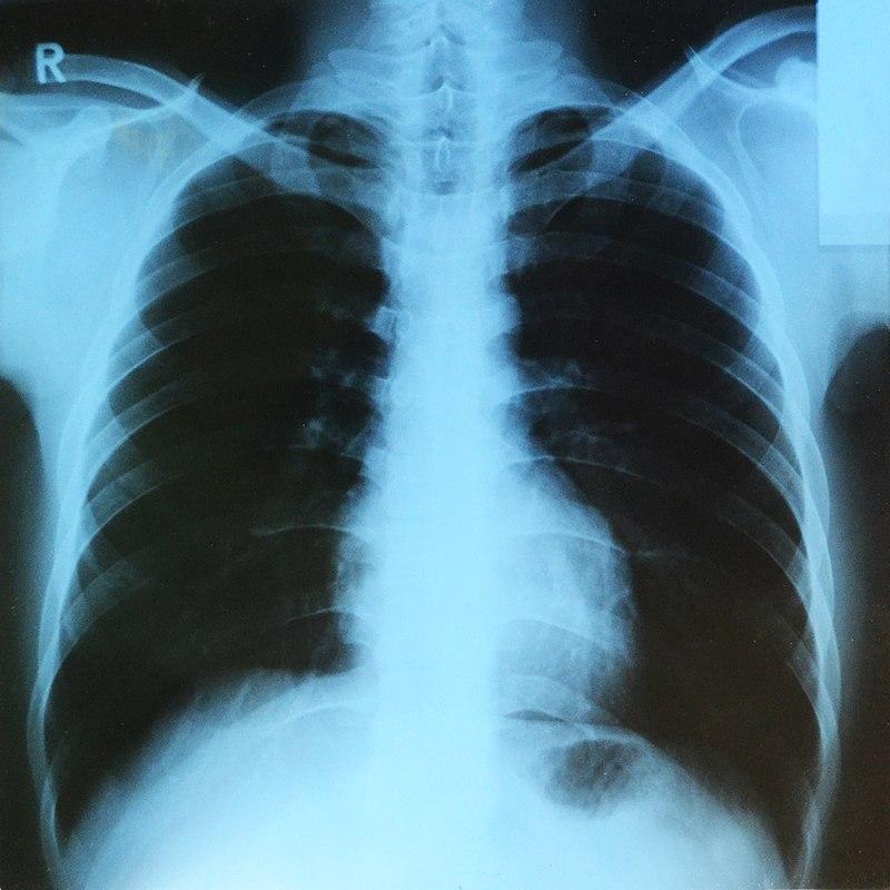 Kdo vynalezl rentgen? Osvícení kostí prý bylo známé před více než 2000 lety